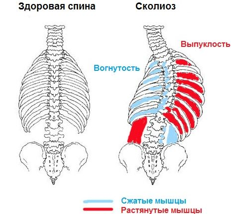 violation of myopically and pinched nerves scoliosis