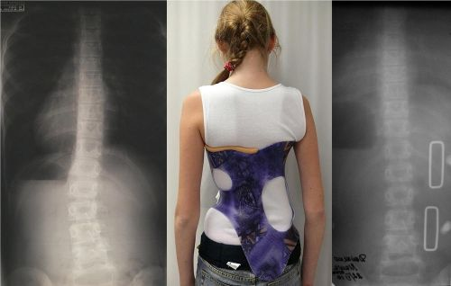 Corset from scoliosis coupled with comprehensive treatment gives excellent results treatment