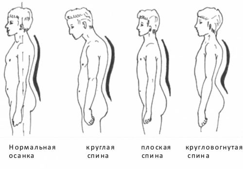 krugovorota spin is characterized by an increase of physiological curves of the spine