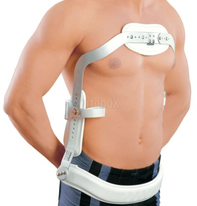 hyperextension corset for the treatment of kyphosis