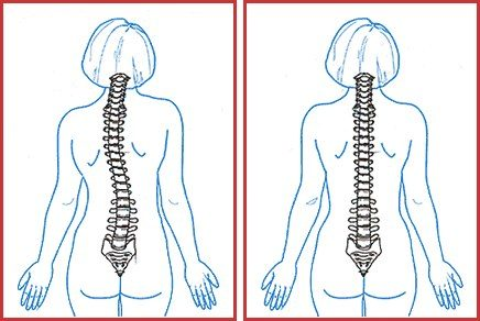 Scoliotic posture leads to a shift of the physiological position of the spinal column