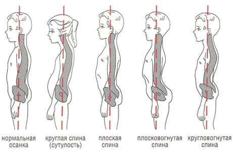 types of posture with impaired physiological lordosis