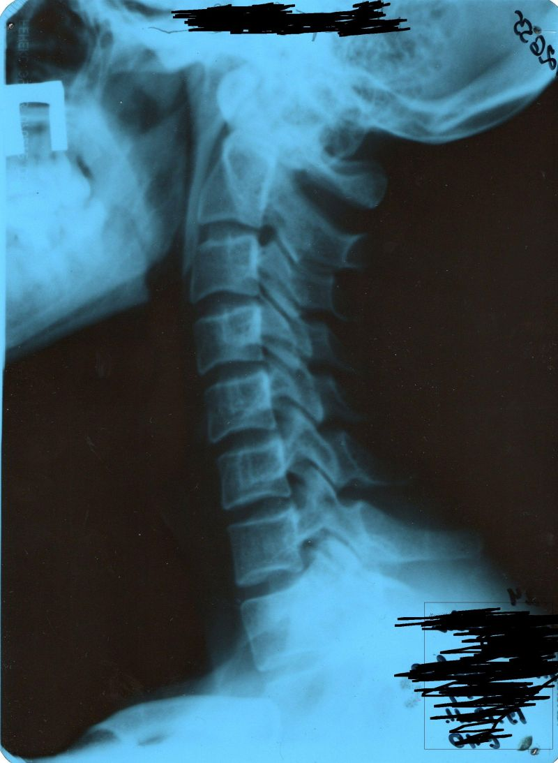 x-ray: geologos of the cervical spine