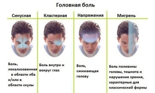 the different Types of headaches