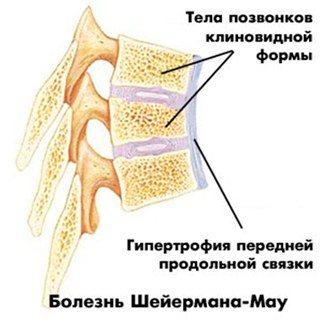 wedge-type vertebrae the syndrome Sherman-Mau