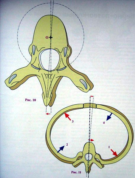 Axial rotation of the vertebrae