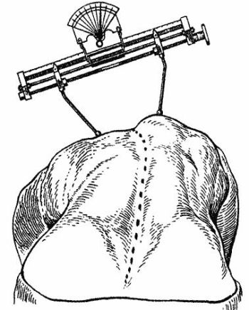 Shultes the Apparatus for measuring the torsion of the spine