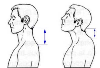 How is the hyperlordosis of the cervical spine