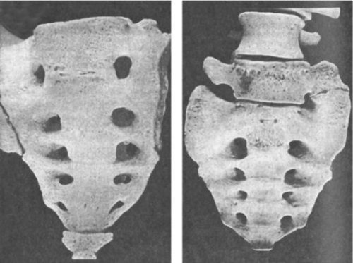the appearance of globalizatsii vertebra s1