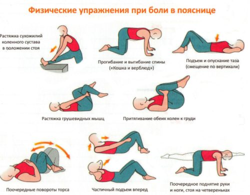 Exercising with a hernia of the spine - complex physical ...
