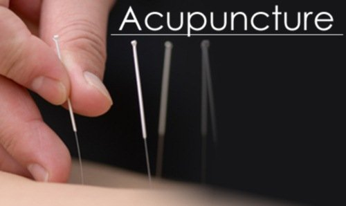 acupuncture with a hernia often primenyaetsya along with drug therapy