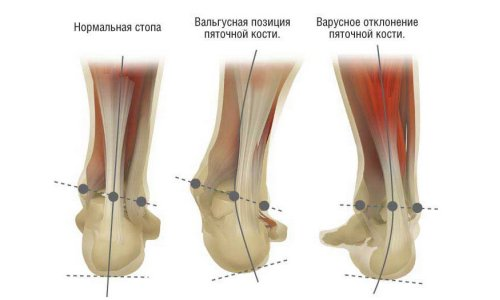 the Kind of foot deformation in children