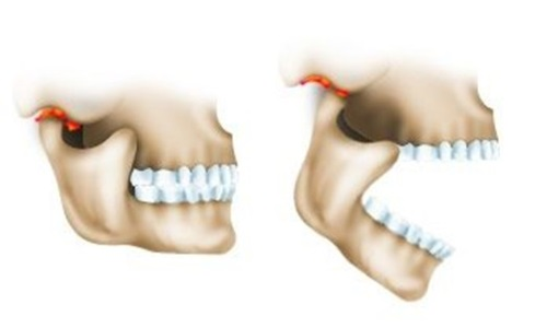 Diagram of TMJ ankylosis