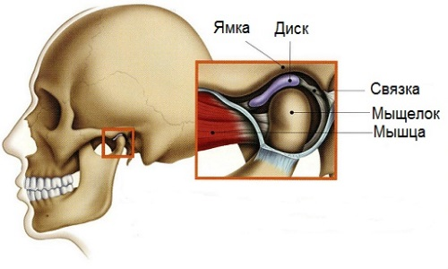 Ankylosis of the temporomandibular joint