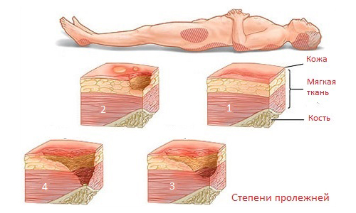 the Degree of pressure sores