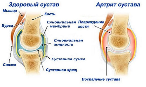 Arthritis as the cause of pain in the joint