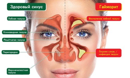 Sinusitis - indications for magnetic therapy