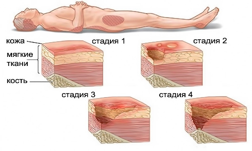 the Stage of development of pressure ulcers
