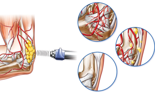 Schematic representation of shock wave therapy