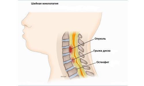 Myelopathy of the cervical spine and the types of deformation