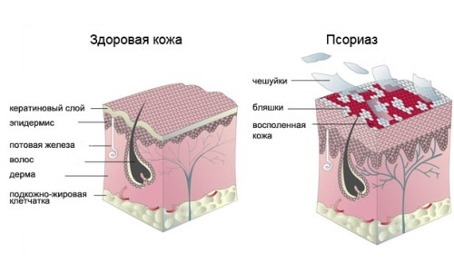 the Holding of hirudotherapy in the treatment of psoriasis