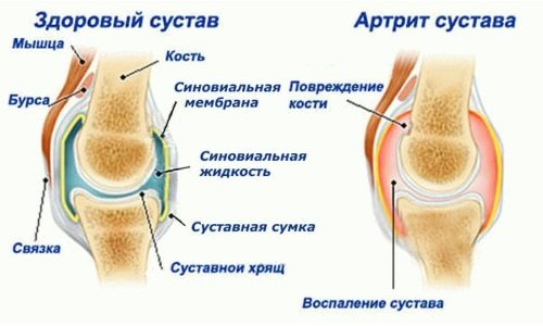 Changes in the joint as arthritis