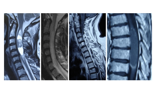 tumors of the spine on x-ray