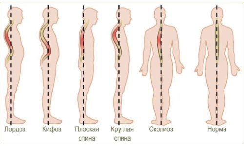 changes of the spine