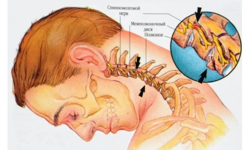 Chondrosis of the cervical spine