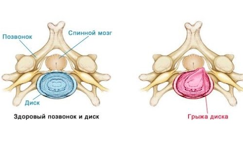 disc Herniation of the spine