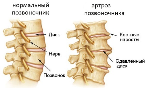 Scheme of osteoarthritis of the spine