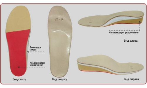 Insoles, correcting the leg length
