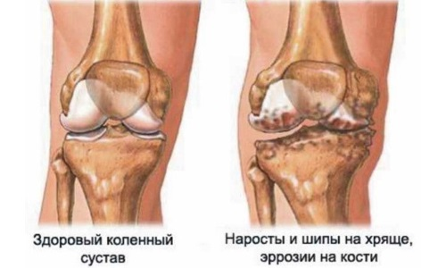 Changes in the joint for gonarthrosis