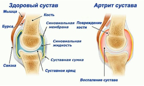 Arthritis - the cause of the knee gonarthrosis
