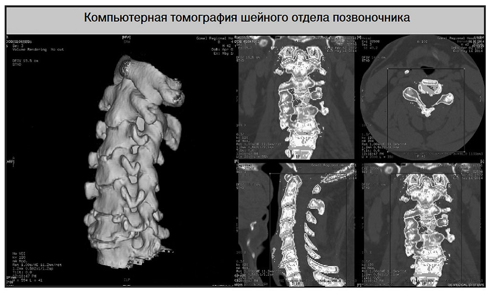 Computed tomography of the cervical spine