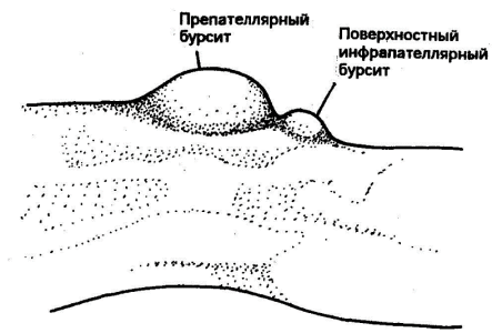 the clinical description of the inflammation of the bursa bursitis Description olecranon bursitis is a condition in which the soft tissue overlying the olecranon at the elbow is inflamed inflammation of the olecranon bursa can be the result of repetitive use, direct trauma or inflammatory conditions such as gout or rheumatoid arthritis.