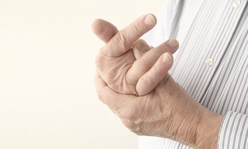 Symptoms of arthritis of the hands