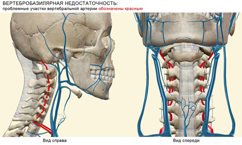 the Problem areas of the vertebral artery