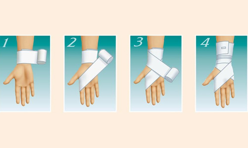 Diagram overlay elastic bandage on hand
