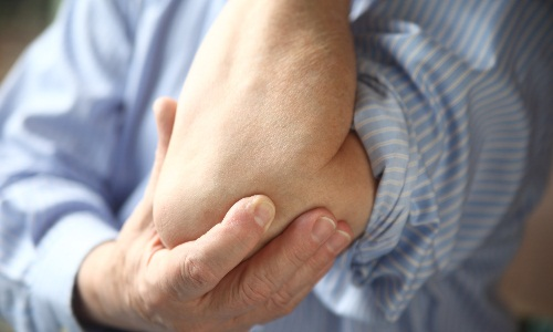 Symptoms of arthritis of the elbow joint