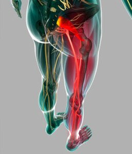 inflammation of the sciatic nerve after exposure