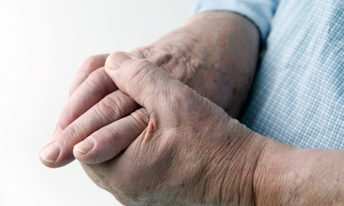 arthritis icd 10