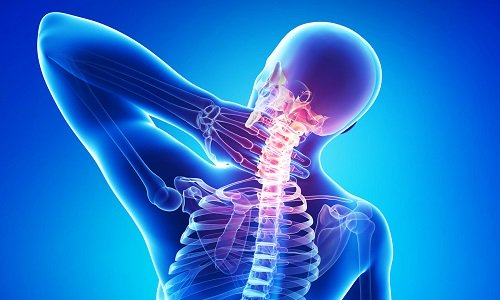 degenerative disc disease is the cause of headaches