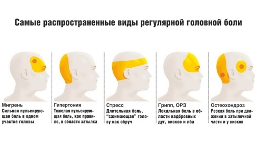 Types of headaches by location
