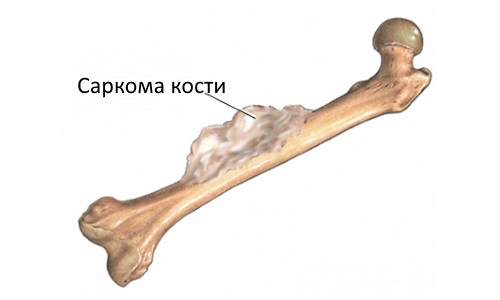 Sarcoma of bone is a consequence of Paget's disease