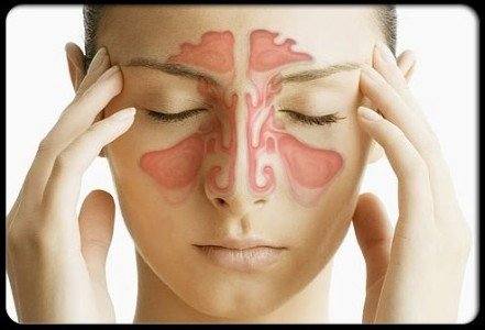 Sinusitis cause headaches in the nose