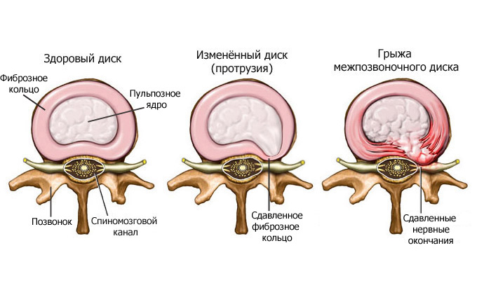 Hernia of the spine