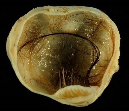 Epithelial (dermoid) cyst of the coccygeal