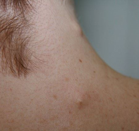 sebaceous cyst neck