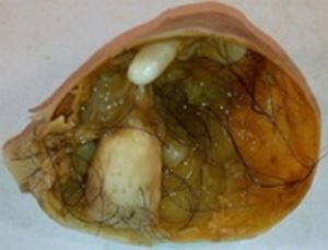 Teratoma containing hair, teeth
